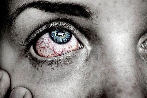 Schlafkrankheiten